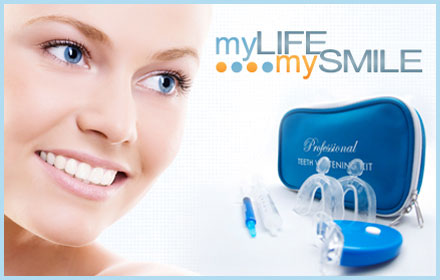 $49 for the Deluxe Home Teeth Whitening Kit from My Life My Smile ($125 value)